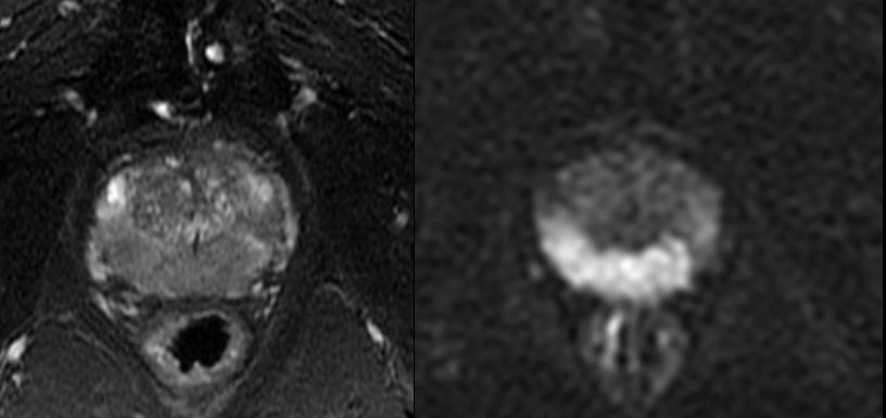 T2-weighted imaging of a man with extensive Gleason score 3+4=7 tumor shows low signal thoughout the peripheral zone corresponding to tumor.  Very high B-valued high-resolution DWI (right) image shows restricted diffusion in the same tumor compared to normal prosatate.